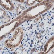 Immunohistochemistry-Paraffin-LCMT1-Antibody-4A5-NBP2-00933-Staining-of-paraffin-embedded-Human-Kidney-tissue-using-anti-LCMT1-mouse-monoclonal-antibody-