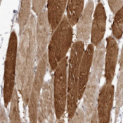 Immunohistochemistry-Paraffin-LCN8-Antibody-NBP1-82841-Staining-of-human-skeletal-muscle-shows-strong-cytoplasmic-and-nuclear-positivity-in-myocytes-