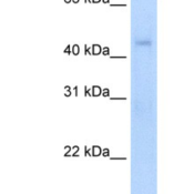 Western-Blot-RGS7-Antibody-NBP1-80513-NIH-3T3-cells-lysate-concentration-5-0ug-ml-