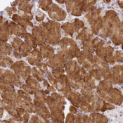 Immunohistochemistry-Paraffin-RHBDD3-Antibody-NBP1-92331-Staining-of-human-stomach-lower-shows-strong-cytoplasmic-positivity-in-glandular-cells-