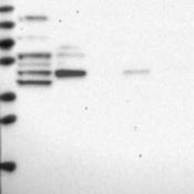 Western-Blot-IQCB1-Antibody-NBP2-14126-Lane-1-Marker-kDa-250-130-95-72-55-36-28-17-10-Lane-2-RT-4-Lane-3-U-251-MG-Lane-4-Human-Plasma-Lane-5-Liver-Lane-6-Tonsil