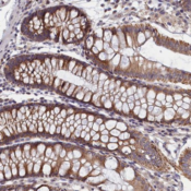 Immunohistochemistry-Paraffin-IQCB1-Antibody-NBP2-14126-Staining-of-human-colon-shows-moderate-cytoplasmic-positivity-in-glandular-cells-