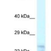 Western-Blot-MDP1-Antibody-NBP1-56573-Hela-Cell-Lysate-1-0ug-ml
