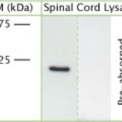 Western-Blot-RhoA-Antibody-NB100-91273-RhOA-Antibody-NB100-91273-rat-spinal-cord-lysate-using-Rabbit-antibody-to-Transforming-protein-RhoA-whole-serum-at-1-2000-dilution-One-single-band-is-