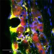 Immunocytochemistry-Immunofluorescence-RhoA-Antibody-NB100-91273-Immunofluorescence-RhOA-Antibody-NB100-91273-rat-trigeminal-at-1-500-dilution-using-Rabbit-antibody-to-Transforming-protein-R