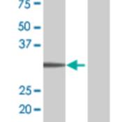 Western-Blot-analysis-of-LDB3-expression-in-transfected-293T-cell-line-by-LDB3-MaxPab-polyclonal-antibody-B01-Lane-1-LDB3-transfected-lysate-31-00-KDa-Lane-2-Non-transfected-lysate-