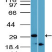 Western-Blot-Rhox11-Antibody-NBP2-23830-analysis-of-Rhox-11-in-12-day-mouse-testis-in-the-1-absence-and-2-presence-of-immunizing-peptide-using-this-antibody-I-goat-anti-rabbit-Ig-HRP-secondary