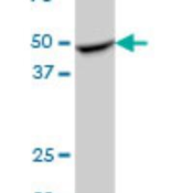 Western-Blot-RILPL1-Antibody-H00353116-B01-FLJ39378-MaxPab-polyclonal-antibody-B01-Lot-08063-WULz-Western-Blot-analysis-of-FLJ39378-expression-in-rat-brain-