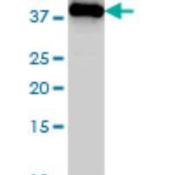 Western-Blot-ING1-Antibody-2F9-H00003621-M05-ING1-monoclonal-antibody-M05-clone-2F9-Western-Blot-analysis-of-ING1-expression-in-MCF-7-Cat-L046V1-