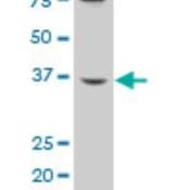 Western-Blot-B3GALT6-Antibody-H00126792-A01-B3GALT6-polyclonal-antibody-A01-Lot-051220JC01-Western-Blot-analysis-of-B3GALT6-expression-in-HepG2-Cat-L019V1-