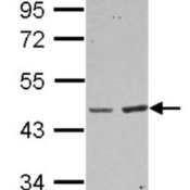Western-Blot-BAAT-Antibody-NBP2-15535-Sample-30-ug-of-whole-cell-lysate-A-A431-B-HeLa-10-SDS-PAGE-gel-diluted-at-1-1000-