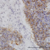 Immunohistochemistry-Paraffin-IRAK2-Antibody-6C7-H00003656-M01-Immunoperoxidase-of-monoclonal-antibody-to-IRAK2-Cat-H00003656-M01-on-formalin-fixed-paraffin-embedded-human-transitional-ce