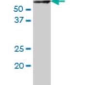 Western-Blot-IRAK2-Antibody-6C7-H00003656-M01-IRAK2-monoclonal-antibody-M01-clone-6C7-Western-Blot-analysis-of-IRAK2-expression-in-K-562-Cat-L009V1-