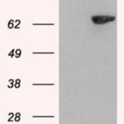 Western-Blot-LNK-Antibody-NB100-2295-HEK293-overexpressing-SH2B3-and-probed-with-mock-transfection-in-first-lane-