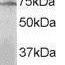 Western-Blot-LNK-Antibody-NB100-2295-0-3ug-ml-staining-of-MOLT4-lysate-35ug-protein-in-RIPA-buffer-Primary-incubation-was-1-hour-Detected-by-chemiluminescence-