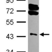 Western-Blot-RING1-Antibody-NBP2-20164-Sample-30-ug-of-whole-cell-lysate-A-293T-10-SDS-PAGE-gel-diluted-at-1-3000-