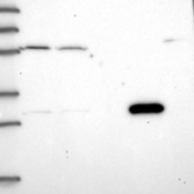 Western-Blot-MRG15-Antibody-NBP1-84937-Lane-1-Marker-kDa-250-130-95-72-55-36-28-17-10-Lane-2-RT-4-Lane-3-U-251-MG-Lane-4-Human-Plasma-Lane-5-Liver-Lane-6-Tonsil