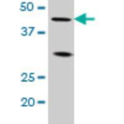 Western-Blot-LEF1-Antibody-2C9-H00051176-M04-Western-Blot-analysis-of-LEF1-expression-in-Jurkat-Cat-L017V1-