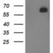Western-Blot-LNK-Antibody-1E6-NBP2-00640-HEK293T-cells-were-transfected-with-the-pCMV6-ENTRY-control-Left-lane-or-pCMV6-ENTRY-LNK-Right-lane-cDNA-for-48-hrs-and-lysed-Equivalent-amounts-of