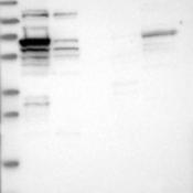 Western-Blot-RIOK3-Antibody-NBP1-86982-Lane-1-Marker-kDa-230-130-95-72-56-36-28-17-11-Lane-2-RT-4-Lane-3-U-251-MG-Lane-4-Human-Plasma-Lane-5-Liver-Lane-6-Tonsil