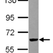 Western-Blot-RIPX-Antibody-NBP2-20168-Sample-30-ug-of-whole-cell-lysate-A-IMR32-7-5-SDS-PAGE-gel-diluted-at-1-3000-