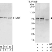 Immunoprecipitation-MAX-binding-protein-Antibody-NBP2-04053-Samples-Whole-cell-lysate-from-HeLa-15-and-50-ug-for-WB-1-mg-for-IP-20-of-IP-loaded-293T-T-50-ug-and-Jurkat-J-50-ug-cells