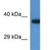 Western-Blot-LOC100047915-Antibody-NBP1-74243-Mouse-Kidney-Lysate-1ug-ml-Gel-Concentration-12-