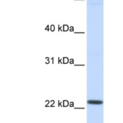 Western-Blot-LOC390338-Antibody-NBP1-91527-Hela-cell-lysate-concentration-0-2-1-ug-ml-