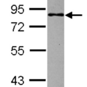 Western-Blot-MBD1-Antibody-NBP2-17234-Sample-30-ug-of-whole-cell-lysate-A-Jurkat-10-SDS-PAGE-gel-diluted-at-1-1000-