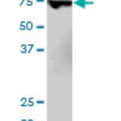 Western-Blot-MBD1-Antibody-4F6-H00004152-M03-Western-Blot-analysis-of-MBD1-expression-in-IMR-32-Cat-L008V1-