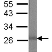 Western-Blot-MBD3-Antibody-NBP2-17235-Western-blot-experiment-using-MBD3-Antibody-at-1-90000-dilution-to-detect-100ng-of-27kDa-recombinant-MBD3-protein-antigen-