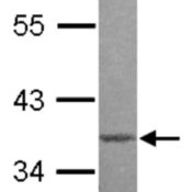 Western-Blot-MBD3-Antibody-NBP2-17235-Sample-20-ug-A-A431-nucleus-12-SDS-PAGE-gel-diluted-at-1-1000-