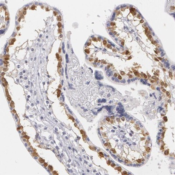 Immunohistochemistry-Paraffin-MBNL3-Antibody-NBP1-85635-Staining-of-human-placenta-shows-nuclear-positivity-in-trophoblastic-cells-