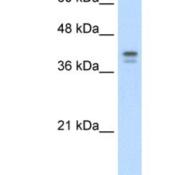Western-Blot-Loricrin-Antibody-NBP1-55127-HepG2-cell-lysate-Antibody-Titration-5-0ug-ml