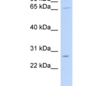 Western-Blot-MRPL13-Antibody-NBP1-57600-721-B-cell-lysate-concentration-0-2-1-ug-ml-