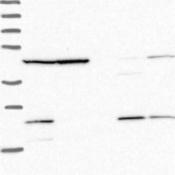 Western-Blot-MRPL17-Antibody-NBP2-13611-Lane-1-Marker-kDa-250-130-95-72-55-36-28-17-10-Lane-2-RT-4-Lane-3-U-251-MG-Lane-4-Human-Plasma-Lane-5-Liver-Lane-6-Tonsil