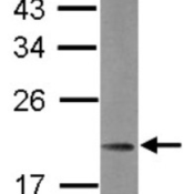 Western-Blot-MRPL21-Antibody-NBP2-19401-Sample-30-ug-of-whole-cell-lysate-A-Raji-12-SDS-PAGE-gel-diluted-at-1-1000-
