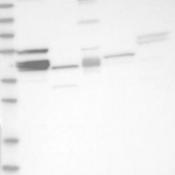 Western-Blot-MRPL38-Antibody-NBP1-81673-Lane-1-Marker-kDa-230-130-95-72-56-36-28-17-11-Lane-2-RT-4-Lane-3-U-251-MG-Lane-4-Human-Plasma-Lane-5-Liver-Lane-6-Tonsil
