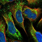 Immunocytochemistry-Immunofluorescence-MRPL42-Antibody-NBP1-83171-Staining-of-human-cell-line-U-2-OS-shows-positivity-in-plasma-membrane-mitochondria-