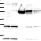Western-Blot-MRPL42-Antibody-NBP1-83171-Lane-1-Marker-kDa-250-130-95-72-55-36-28-17-10-Lane-2-RT-4-Lane-3-U-251-MG-Lane-4-Human-Plasma-Lane-5-Liver-Lane-6-Tonsil