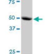 MRPS30-MaxPab-polyclonal-antibody-Western-Blot-analysis-of-MRPS30-expression-in-A-431-
