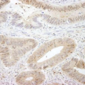Immunohistochemistry-Paraffin-MST1-2-Antibody-NBP1-28672-Sample-FFPE-section-of-human-placenta-Antibody-Affinity-purified-rabbit-anti-MST1-2-STK3-4-used-at-a-dilution-of-1-250-Detection-DA