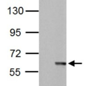 Western-Blot-MST2-Antibody-NBP1-32313-Sample-30-ug-of-whole-cell-lysate-A-Non-transfected-293T-lysates-B-STK3-transfected-293T-lysates-7-5-SDS-PAGE-antibody-diluted-at-1-5000-