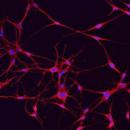 Adult-NEONATAL-Melanocyte-5x106-cells-Zen-Bio-Inc-MEL-F-NEO