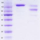 Human-IgE-non-immune-azide-free-low-endotoxin-BioPorto-Diagnostics-A-S-DIA-HE1-100µg