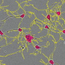 E18-Primary-Rat-Cortical-Cells-Neuromics-PC35102