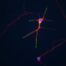 E18-Primary-Rat-Hippocampal-Cells-Neuromics-PC35101