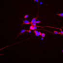 hN2-Human-Neuron-Discovery-Kit-1-million-cells-Neuromics-HN60000