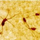 Neuropeptide-Y-Antibody-ImmunoStar-22940
