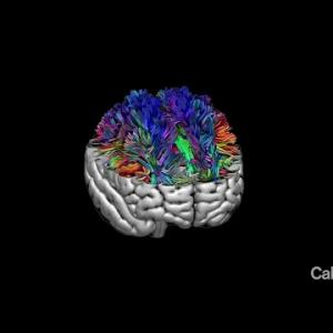 Caltech and the Tianqiao and Chrissy Chen Institute Launch Major Neuroscience Initiative
